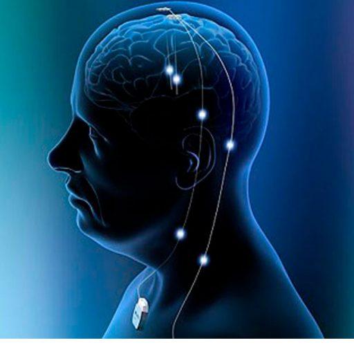 Grafik menschlicher Kopf mit leicht sichtbarem Gehirn